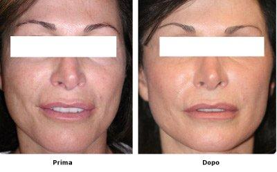 prima edopo laser skin resurfacing medicina estetica